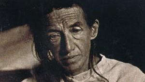 Auguste Deter war die erste Patientin, an der Alois Alzheimer das Phänomen der Demenz erforschte.